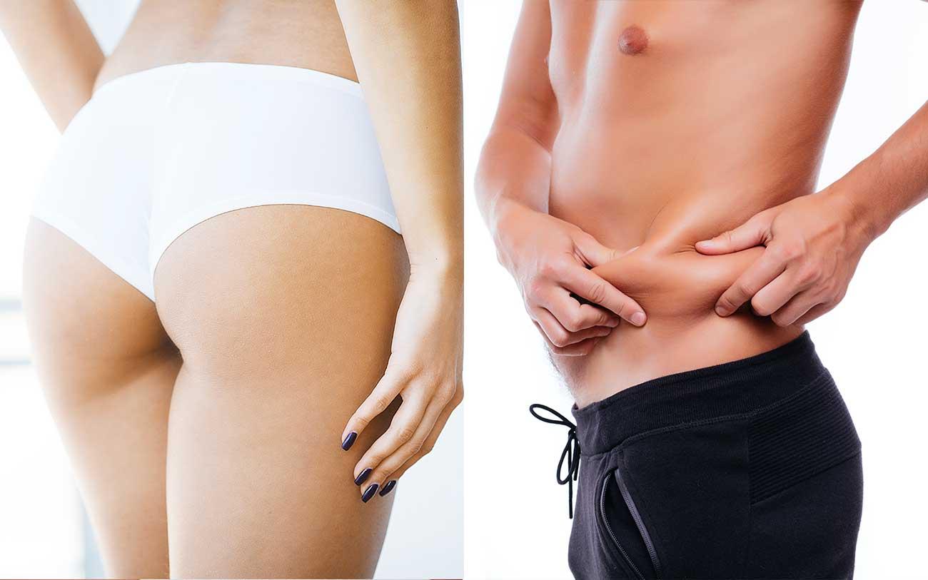Fettreduktion und Cellulitebehandlung