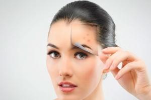Hautstraffung und Hautverjüngung ClearLift